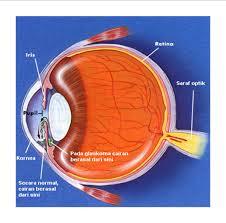 Obat Tradisional Glaukoma atau Mata Katarak Yang Aman